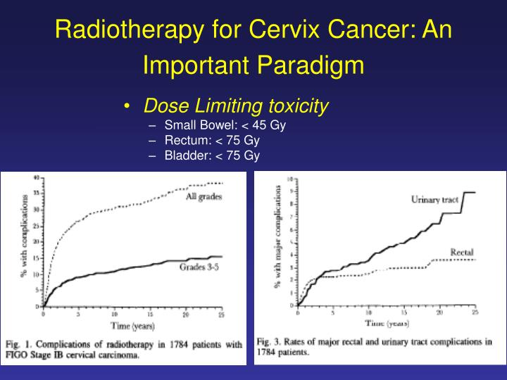 Radiotherapy for Cervix Cancer: An Important Paradigm
