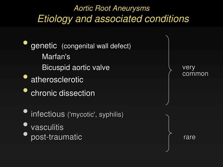 Aortic Root Aneurysms
