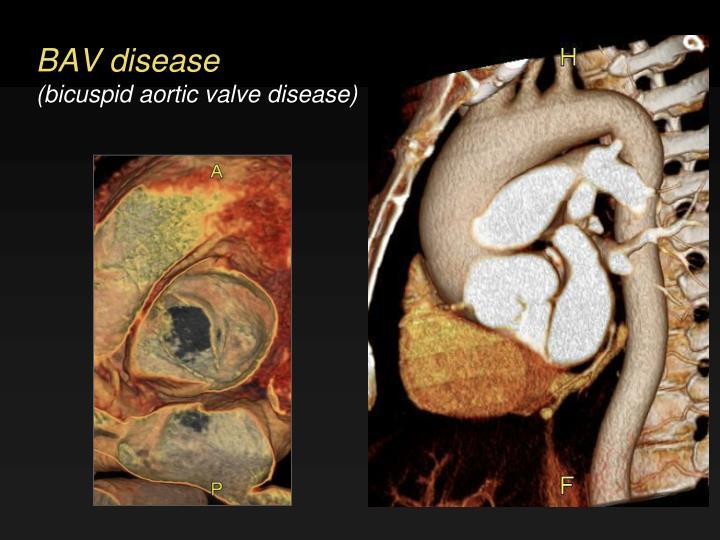 BAV disease