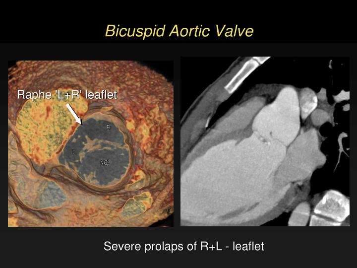 Bicuspid Aortic Valve