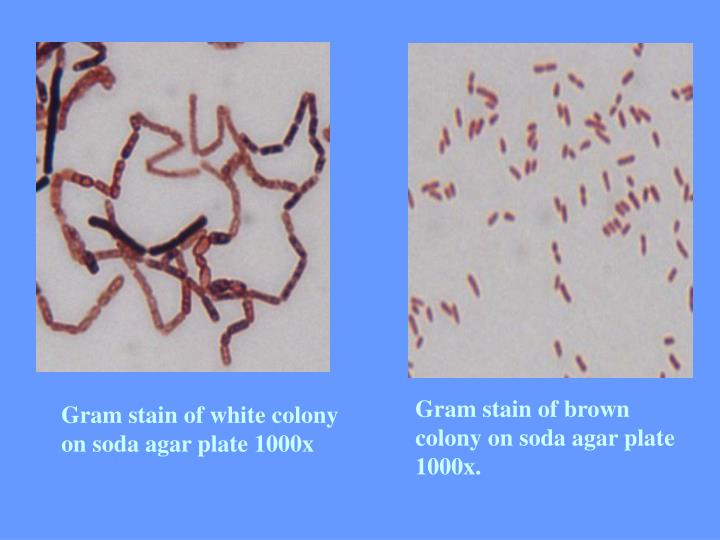 Gram stain of brown colony on soda agar plate 1000x.