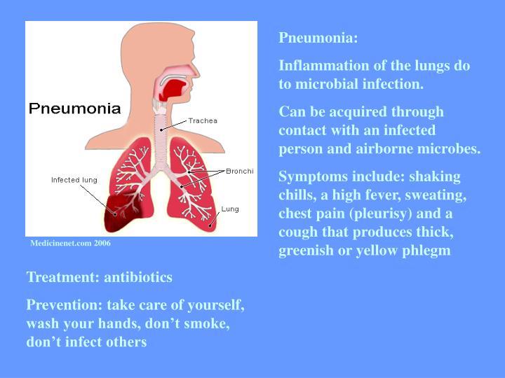 Pneumonia: