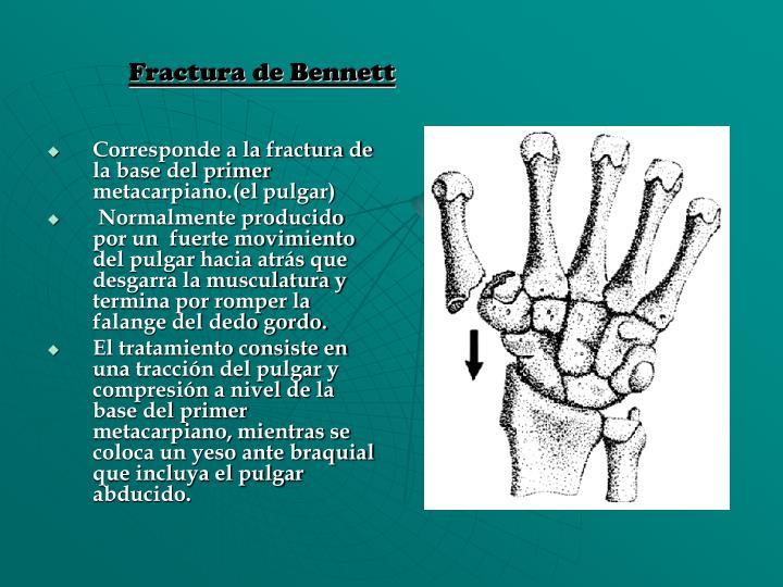 Fractura de Bennett