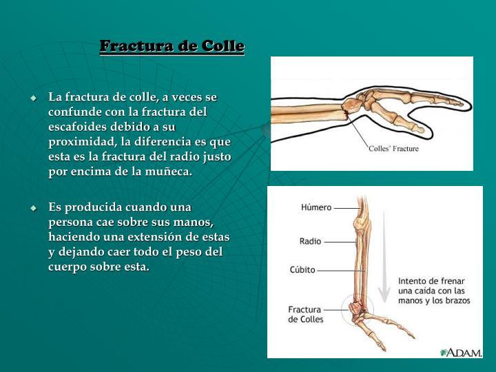 Fractura de Colle