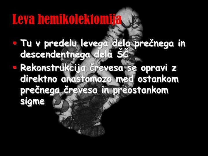 Leva hemikolektomija