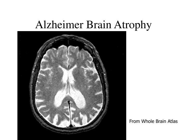 Alzheimer Brain Atrophy