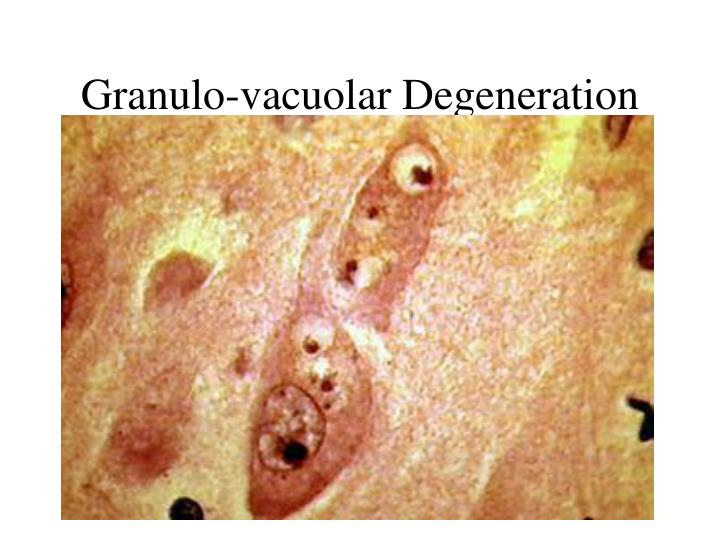 Granulo-vacuolar Degeneration