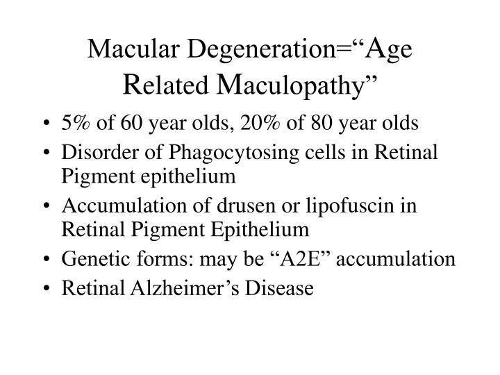 """Macular Degeneration="""""""