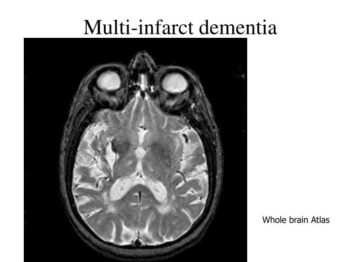Multi-infarct dementia