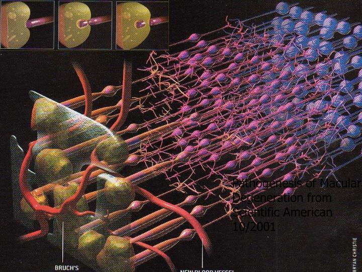 Pathogenesis of Macular