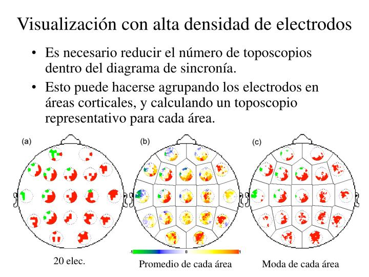 Visualización con alta densidad de electrodos