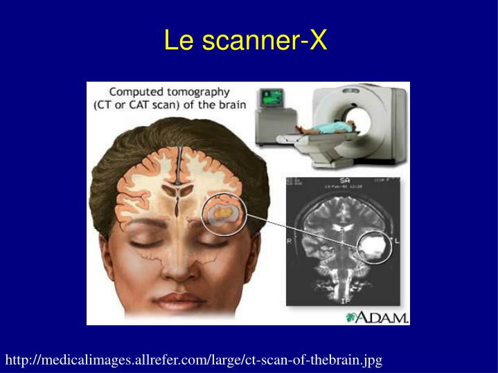 Le scanner-X