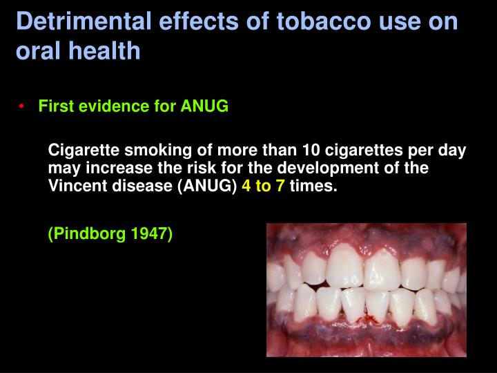 Detrimental effects of tobacco use on oral health