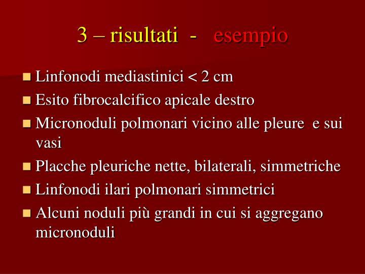 3 – risultati  -