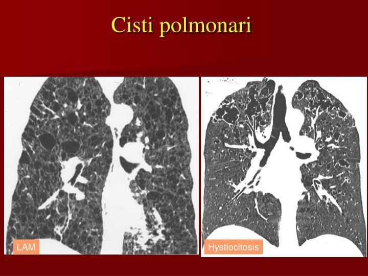 Cisti polmonari
