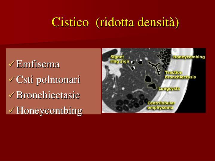 Cistico  (ridotta densità)