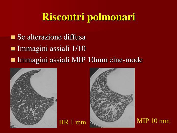 Riscontri polmonari