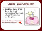 cardiac pump component