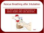 rescue breathing after intubation