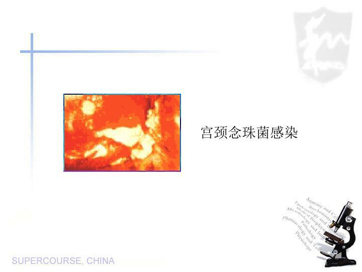 宫颈念珠菌感染