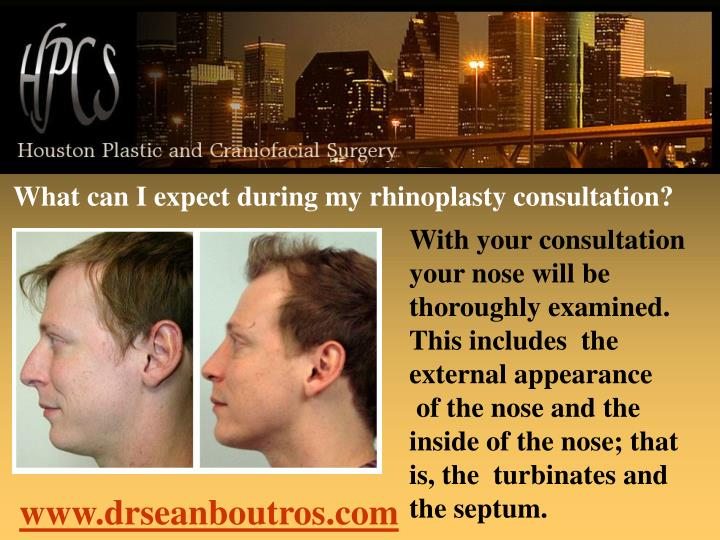 What can I expect during my rhinoplasty consultation?