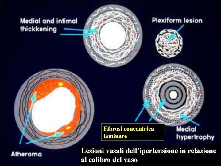 Fibrosi concentrica laminare