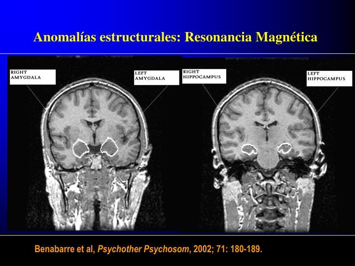 Anomalías estructurales: Resonancia Magnética