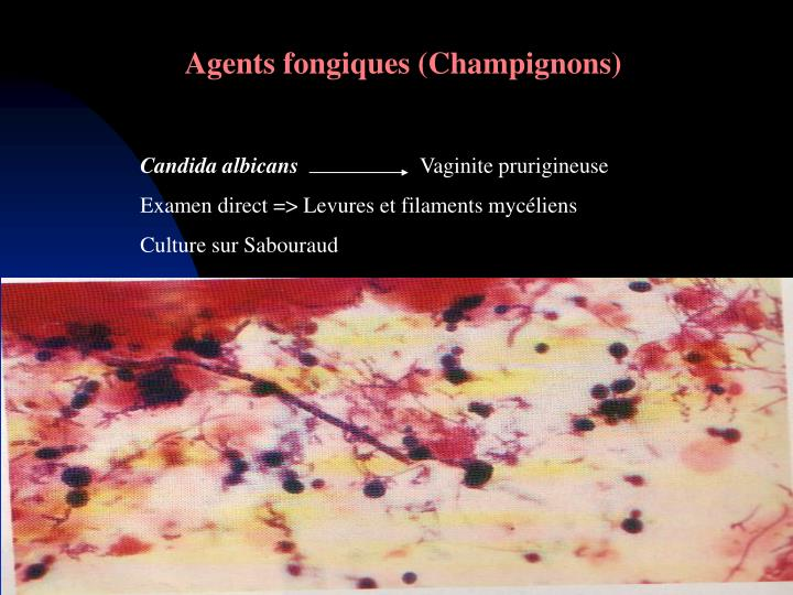 Agents fongiques (Champignons)