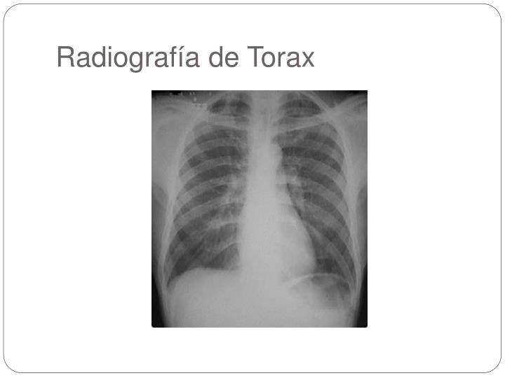 Radiografía de Torax