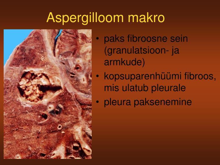 Aspergilloom makro