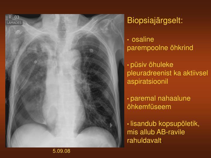 Biopsiajärgselt: