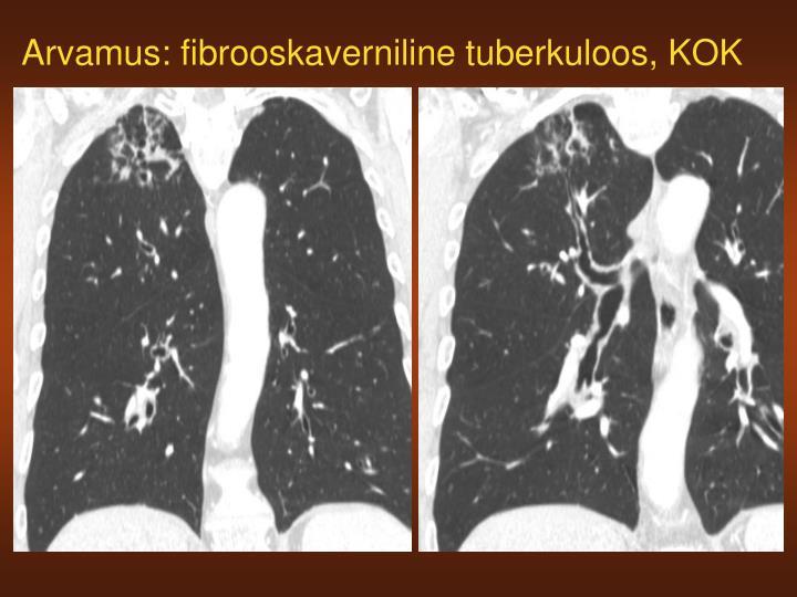 Arvamus: fibrooskaverniline tuberkuloos, KOK