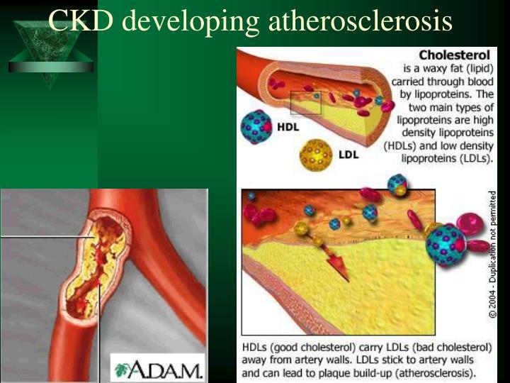 CKD developing atherosclerosis