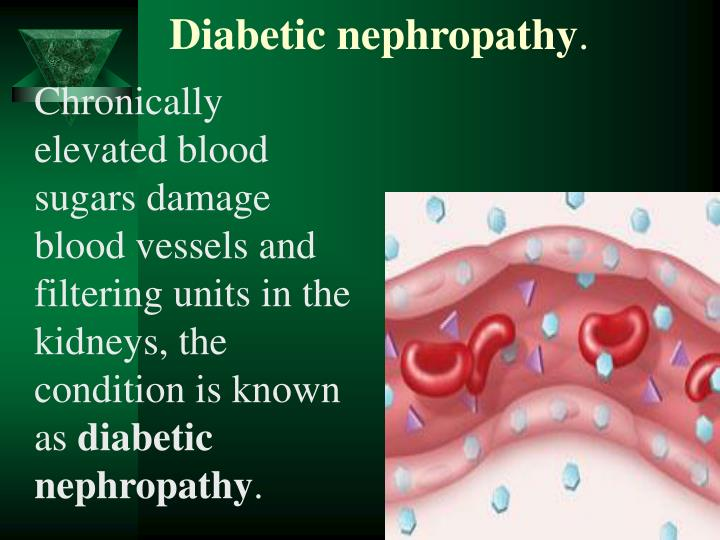 Chronically elevated blood sugars damage blood vessels and filtering units in the kidneys, the condition is known as