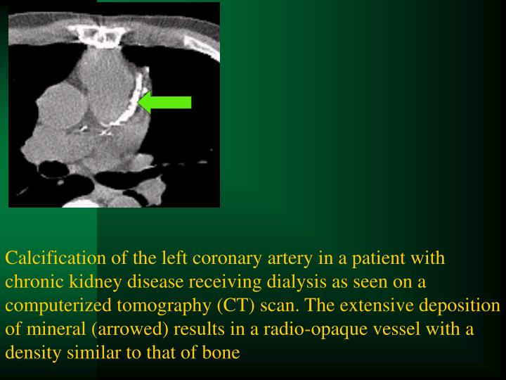 Calcification of the left coronary artery in a patient with chronic kidney disease receiving dialysis as seen on a computerized tomography (CT) scan. The extensive deposition of mineral (arrowed) results in a radio-opaque vessel with a density similar to that of bone