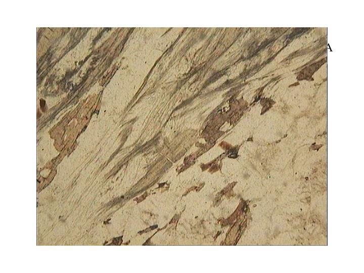 Gneiss sillimanite LPNA