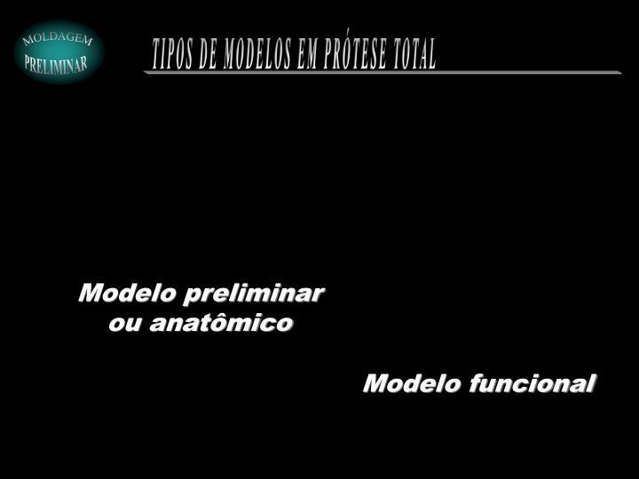 TIPOS DE MODELOS EM PRÓTESE TOTAL