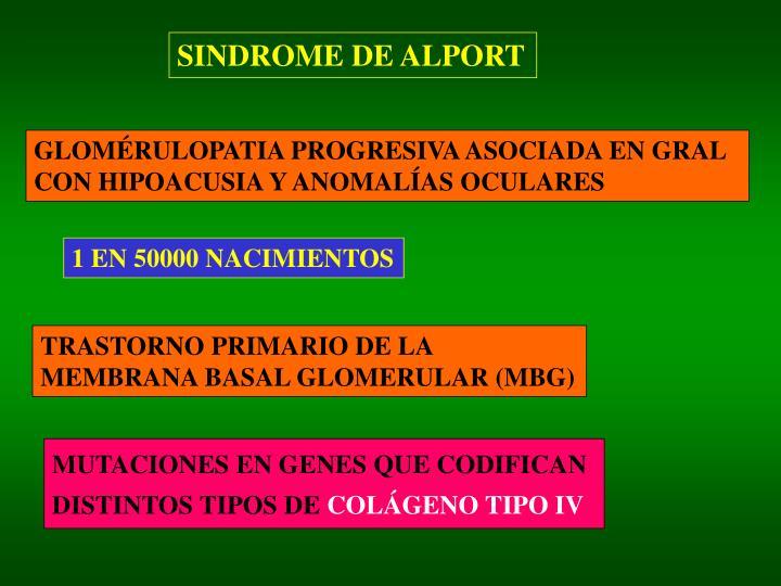 SINDROME DE ALPORT