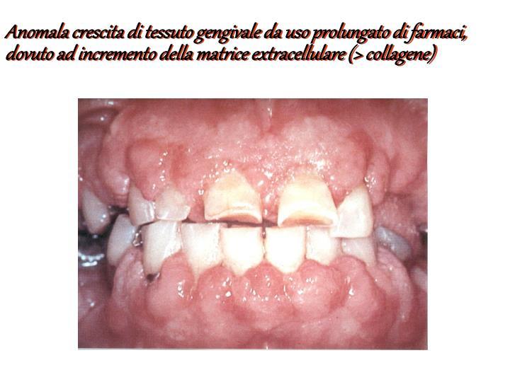 Anomala crescita di tessuto gengivale da uso prolungato di farmaci, dovuto ad incremento della matrice extracellulare (> collagene)