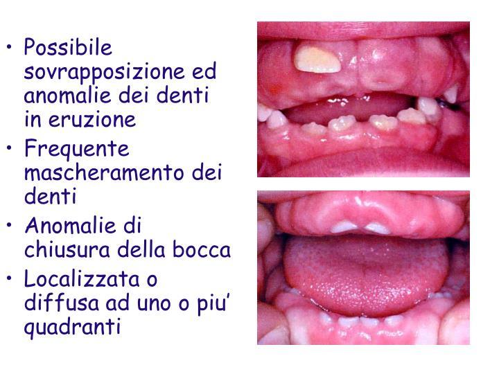 Possibile sovrapposizione ed anomalie dei denti in eruzione