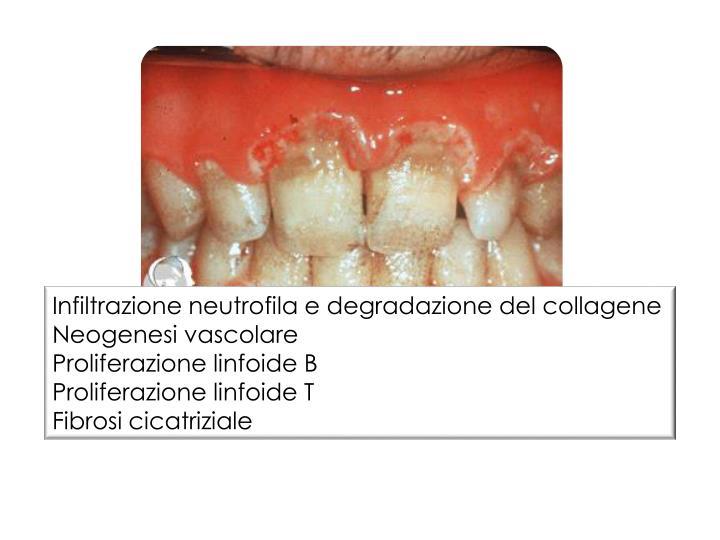 Infiltrazione neutrofila e degradazione del collagene