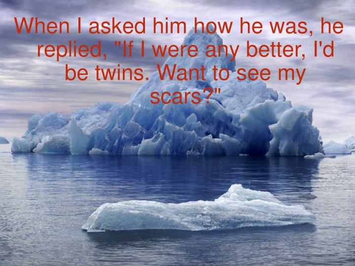 """When I asked him how he was, he replied, """"If I were any better, I'd be twins. Want to see my scars?"""""""