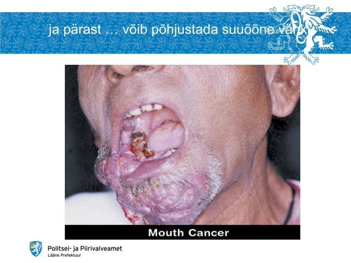 ja pärast … võib põhjustada suuõõne vähki