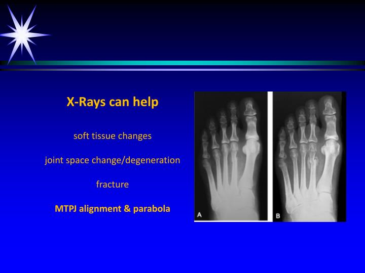 X-Rays can help