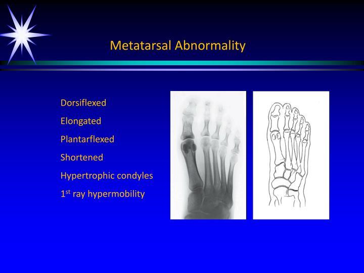 Metatarsal Abnormality