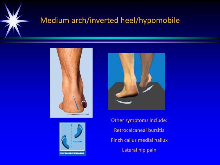 Medium arch/inverted heel/