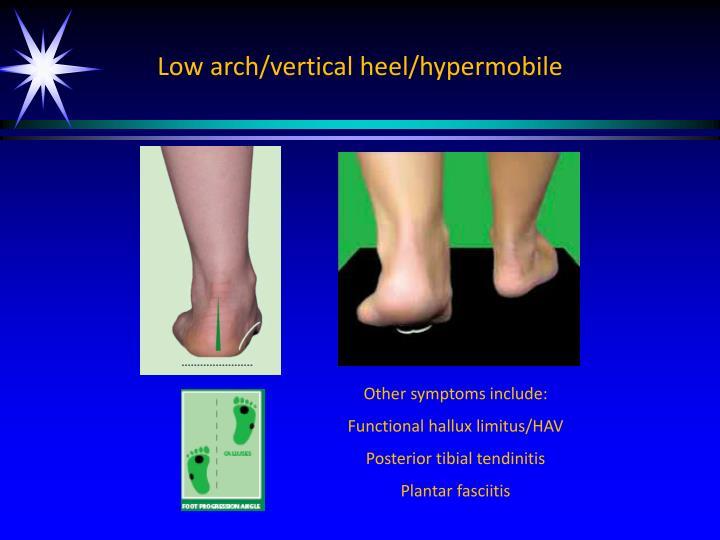 Low arch/vertical heel/
