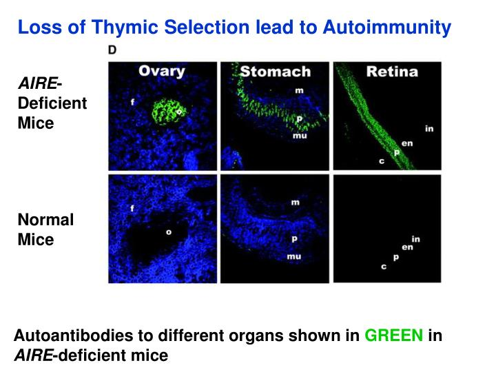 Loss of Thymic Selection lead to Autoimmunity