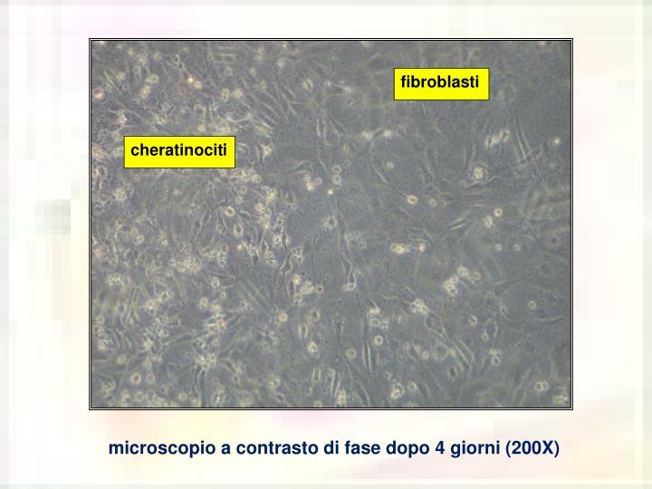 fibroblasti