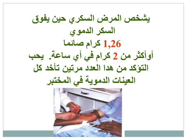 يشخص المرض السكري حين يفوق السكر الدموي